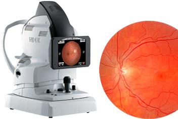 Retina Camera