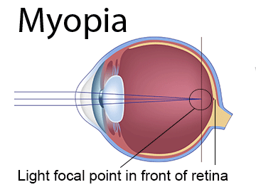 Myopia Near Sighted