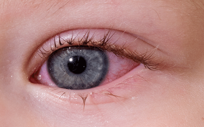 Eye Infection, Red Eye